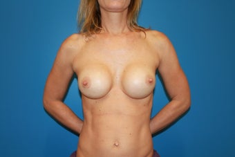 Breast Implant Revision after 347361