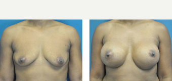 35-44 year old woman treated with Breast Augmentation before 3776363