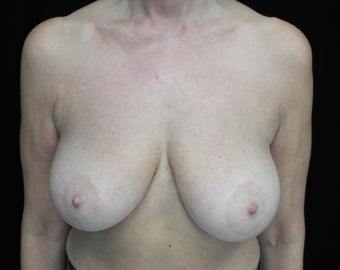 Before and After Images of Breast Lift Patient  1428948