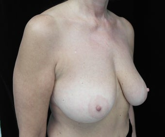 Before and After Images of Breast Lift Patient  before 1428948