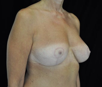 Before and After Images of Breast Lift Patient  after 1428948