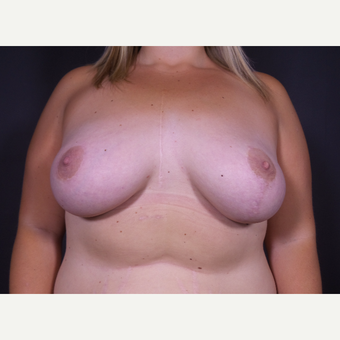 25-34 year old woman treated with Breast Lift with Implants after 3059051