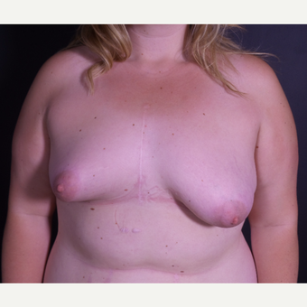 25-34 year old woman treated with Breast Lift with Implants before 3059051