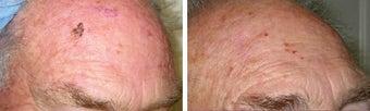 Mole Removal photos before 951877