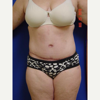 35-44 year old woman treated with Tummy Tuck after 3225802