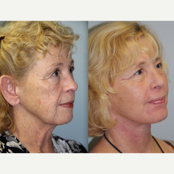 65 year old woman treated with Neck Lift before 3315751