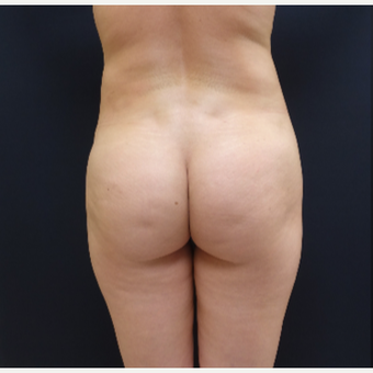 25-34 year old woman treated with 712cc Round Silicone Butt Implants before 3259530
