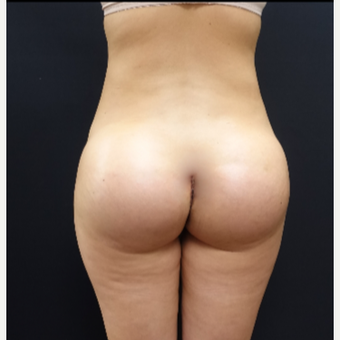25-34 year old woman treated with 712cc Round Silicone Butt Implants after 3259530