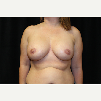 35-44 year old woman treated with Breast Augmentation after 3659074