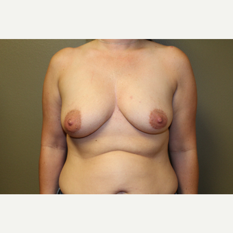 35-44 year old woman treated with Breast Augmentation before 3659074