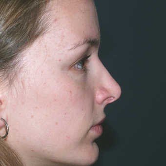 Chin weakness can impact the appearance of one's nose and profile view after 3679424