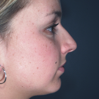 Chin weakness can impact the appearance of one's nose and profile view before 3679424