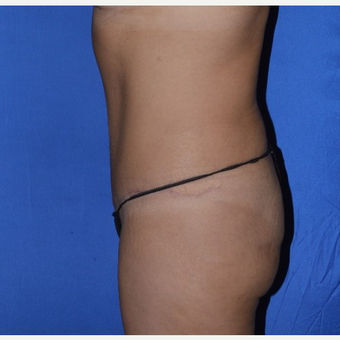 35-44 year old woman treated with No-Drain Tummy Tuck after 3655683
