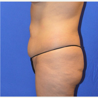 35-44 year old woman treated with No-Drain Tummy Tuck before 3655683