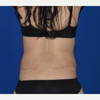 45-54 year old woman treated with Extended No-Drain Tummy Tuck after 3655775