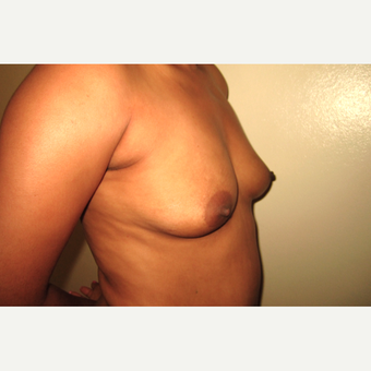 25-34 year old woman treated with Breast Augmentation before 3466540