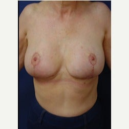 55-64 year old woman treated with Breast Implants after 2130197