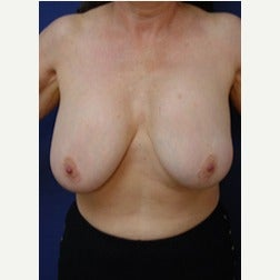 55-64 year old woman treated with Breast Implants before 2130197