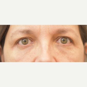 54 year old woman treated with Eyelid Surgery