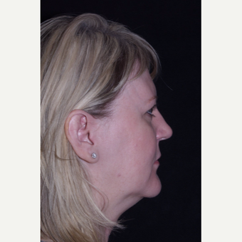 50 year old woman undergoes limited incision facelift, browlift and direct defatting of her neck. before 3439596