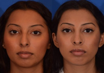 18-24 year old woman treated with Rhinoplasty before 2132923