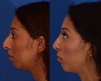 18-24 year old woman treated with Rhinoplasty after 2132923