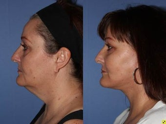56 year old female, face lift with fat grafting to the face after 1331549
