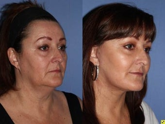 56 year old female, face lift with fat grafting to the face 1331549