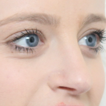 18-24 year old woman treated with Rhinoplasty after 3566049