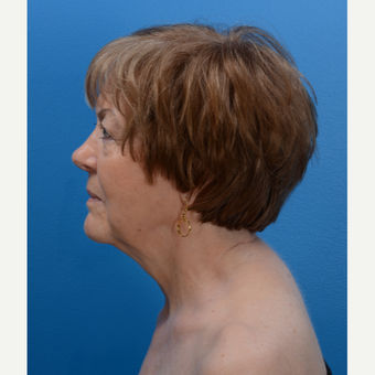 71 year old woman treated with Chin Liposuction and Laser Skin Tightening after 3093631