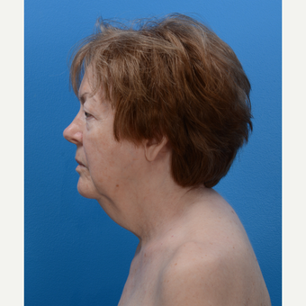 71 year old woman treated with Chin Liposuction and Laser Skin Tightening before 3093631