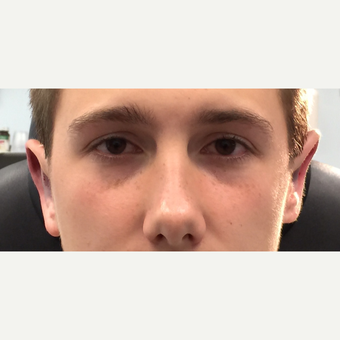 17 or under year old man treated with Eyelid Surgery after 3847096