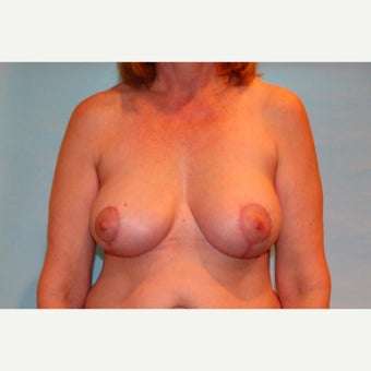 54 year old woman treated with Breast Implant Revision with capsulectomy, implant exchange and mastopexy after 2572639