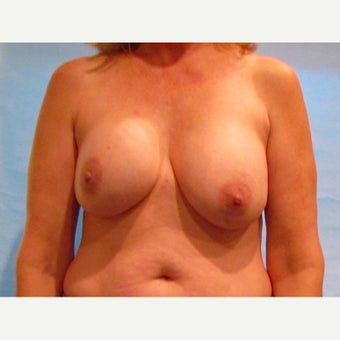 54 year old woman treated with Breast Implant Revision with capsulectomy, implant exchange and mastopexy before 2572639
