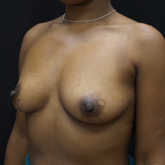 Breast Augmentation before 3007853