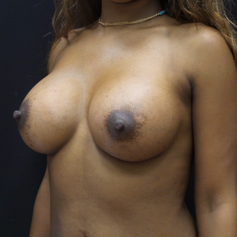 Breast Augmentation after 3007853