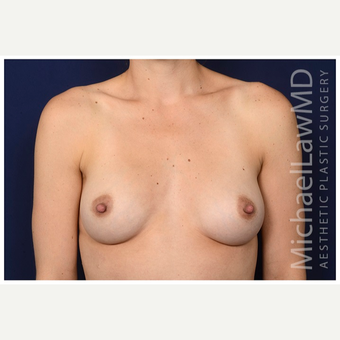 25-34 year old woman treated with Mentor Breast Implants after 3383423