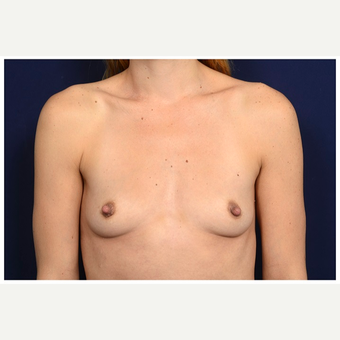 25-34 year old woman treated with Mentor Breast Implants before 3383423