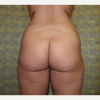 Liposuction before 3807161