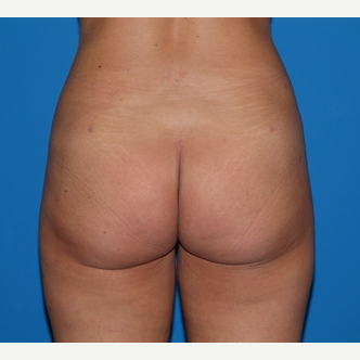 Liposuction after 3807161