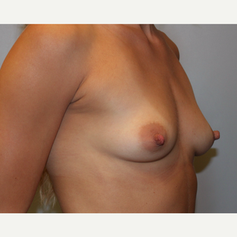 25-34 year old woman treated with Breast Augmentation before 3808417