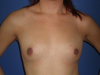Transgender Breast Augmentation before 1330756