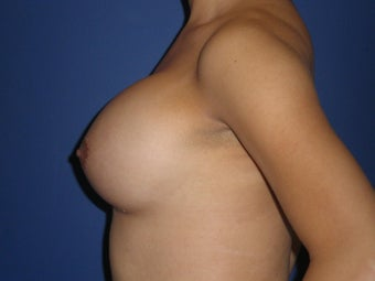 Transgender Breast Augmentation 1330756
