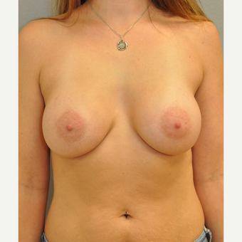 25-34 year old woman treated with Breast Augmentation after 3842497