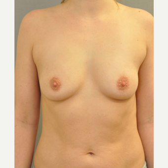 25-34 year old woman treated with Breast Augmentation before 3842497
