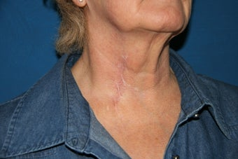 Tethered Neck Scar Revision after 706219