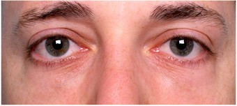 Restylane to lower eyelid hollows after 219713