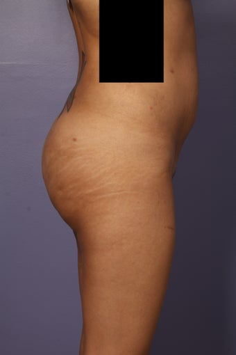 Buttock augmentation  after 585018