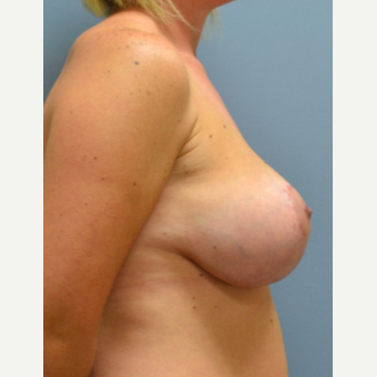 35-44 year old woman treated with Breast Lift with Implants after 3610727