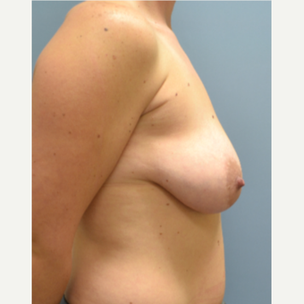 35-44 year old woman treated with Breast Lift with Implants before 3610727